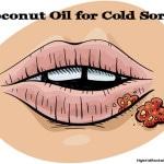 Coconut Oil for Cold Sores: HybridRastaMama.com