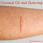 Coconut Oil and Scarring: HybridRastaMama.com